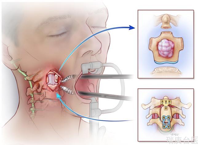 案例 | 質子治療脊索瘤. 治療十年未復發