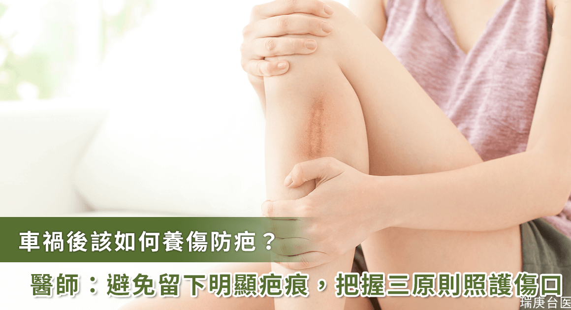 車禍傷口留疤該怎么辦?外科醫師教你對抗疤痕的黃金三原則